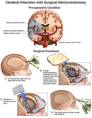 Cerebral Infarction with Surgical Hemicraniectomy