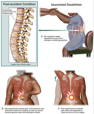 Spinal Fracture with Subsequent Pain and Disability