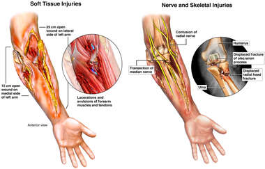 Crush Injuries of the Left Arm