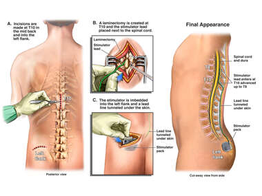 Placement of Thoracic Spinal Cord Stimulator