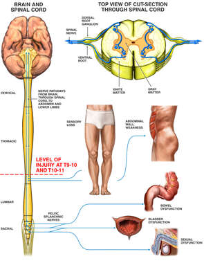 Disruption of Nerves to Pelvic Organs