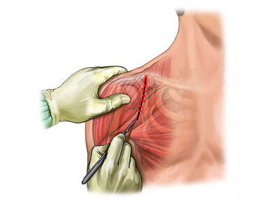 Anterior Shoulder Incision