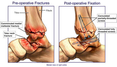 Right Tibial and Talar Fractures with Surgical Fixation with Screws