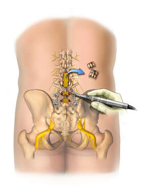 Multiple Lumbar Level Surgical Procedures and Bone Fusion