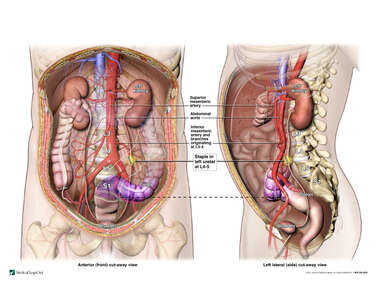 Left Ureter Injury Site with Vascular Anatomy of the Mesentery and Colon