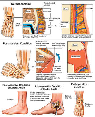 Ankle Injury and Surgical Repair
