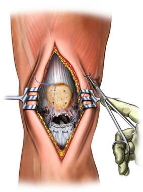 Suture of Petallar Ligament