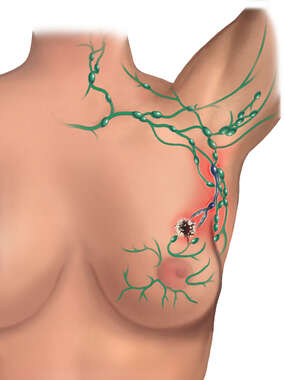 Breast Cancer Spreads to Axillary Region