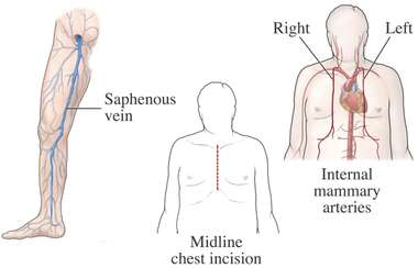 Heart Surgery - Graft and Incision Sites for Coronary Artery Bypass Procedure