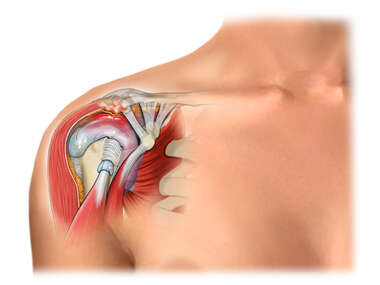 Shoulder - Soft Tissue Impingement