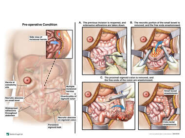 Continued Abdominal Complications with Additional Surgical Repairs
