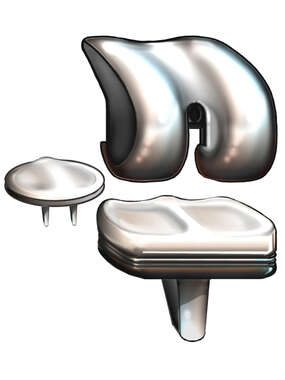 Knee Joint Replacement Prosthetic Hardware