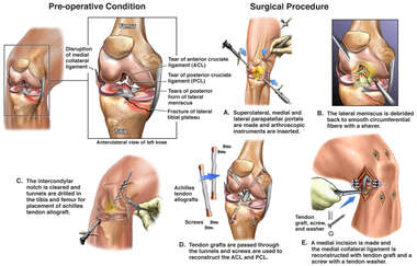 Left Knee Injuries with Initial Surgical Repairs