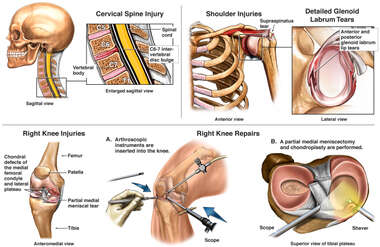 Injuries to the Neck, Shoulder and Knee with Surgical Repair