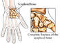 Complete Fracture of Scaphoid Bone