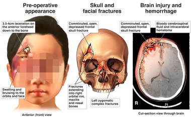 Asian Female Girl with Post-accident Head and Brain Injuries
