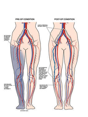 Right Femoral Artery Occlusion with Bypass Procedure