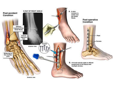 Right Fibular Fracture with Surgical Fixation