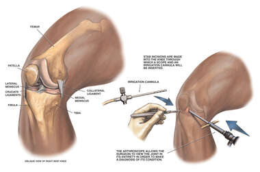 Diagnostic Arthroscopy of the Right Knee
