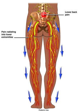 Lower Back Pain - Spinal Cord Compression