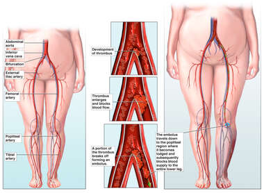 Progression of Vascular Blockages