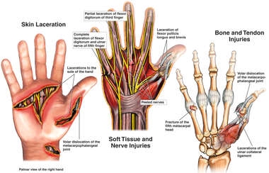 Traumatic Right Hand Injuries