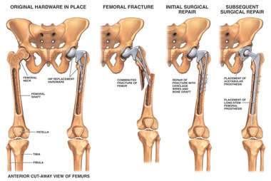 Fracture of Femur in Patient with Prosthetic Hip Joint with Surgical Repair