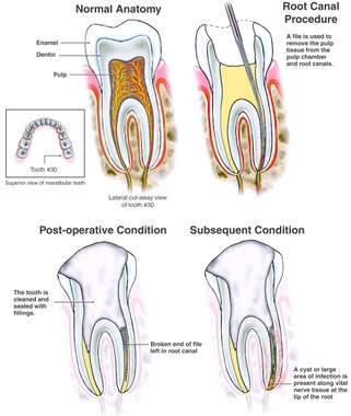 Root Canal Procedure with Broken File and Subsequent Abscess
