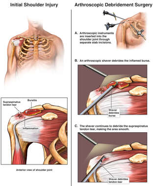 Torn Rotator Cuff Ligaments with Arthroscopic Debridement Surgery