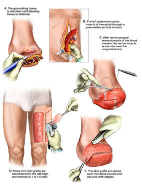 Free Flap Reconstruction of Foot Amputation
