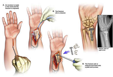 Open Reduction and Internal Fixation of Radius Fracture