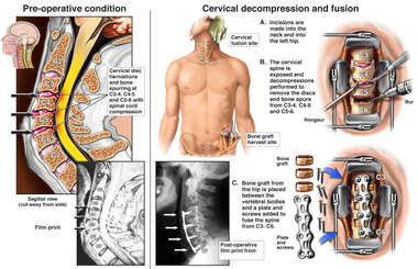 Cervical Disc Herniations with Multilevel Fusion Procedure