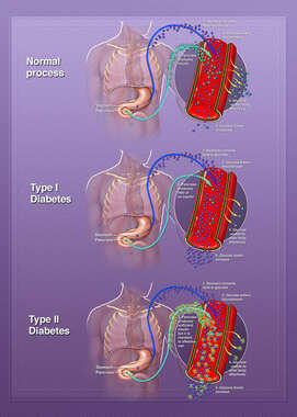 Diabetes, Type 1 and Type 2