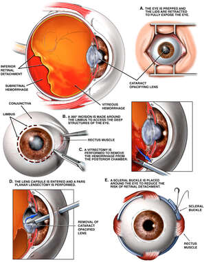 Left Eye Injury with Surgical Repair