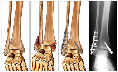 Bimalleolar Ankle Fracture with Subsequent Surgical Fixation with Plates and Screws
