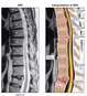 Multilevel Thoracic Spine Injuries