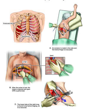 Traumatic Chest Injury with Surgical Thoracotomy and Lobectomy