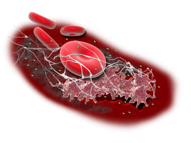 Blood Clotting Formation