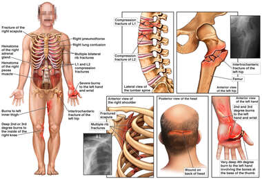 Male Figure with Spine, Hip, Shoulder, Scalp and Hand Injuries