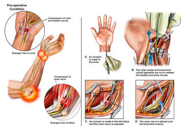 Left Ulnar and Median Nerve Compression with Surgical Decompression