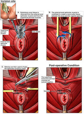 Overlapping Sphincteroplasty