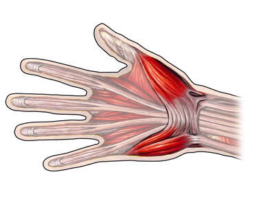 Superficial Muscles of the Hand