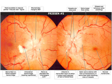 Optic Nerve Injuries