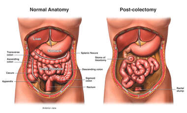 Bowel Surgery - Colectomy (Colon Removal) with Ileostomy Stoma
