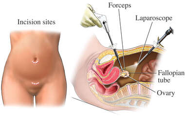 Laparoscopic Tubal Ligation
