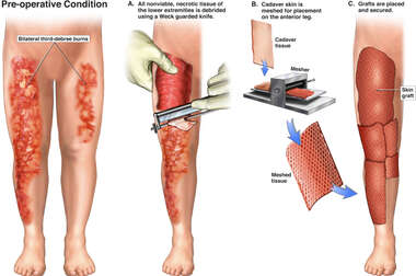 Bilateral Leg Burns with Skin Grafting