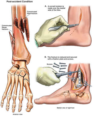 Right Ankle Fracture with Internal Fixation