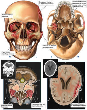 Post-accident Skull Fractures and Brain Injuries