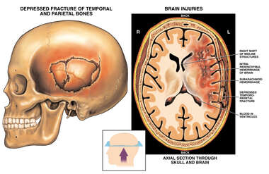 Post-accident Skull Fracture and Brain Injuries