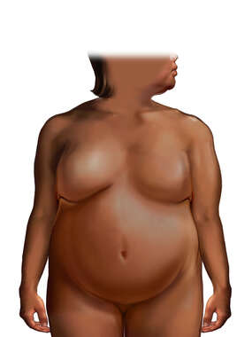 Obese Female Figure